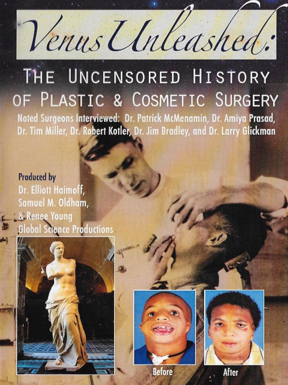 Venus Unleashed: The History of Plastic Surgery